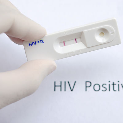 Interner Link: AIDS-Test